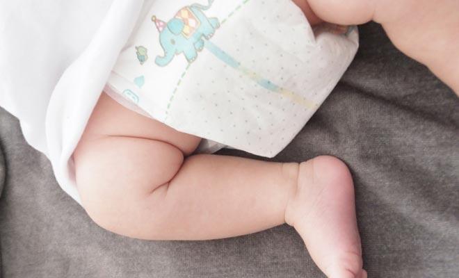 赤ちゃんのおむつかぶれ